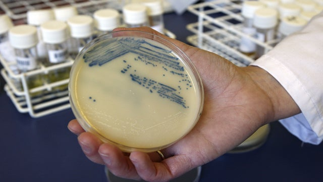 Are Bacteria Actually Driving You Crazy?