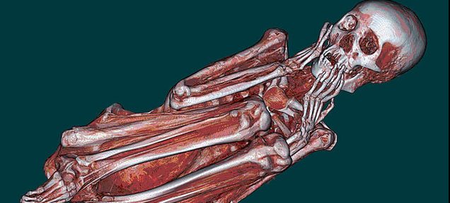 Everything We've Learned About Mummies Using 21st Century Technology