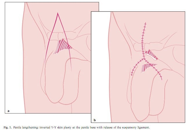 The (dubious) science of penis enlargement