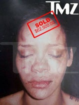 Price of Battered Rihanna Pic: $62,500