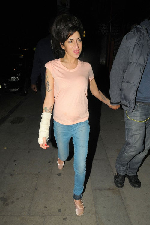 What Happened To Amy Winehouse's Arm?