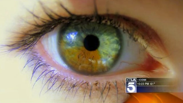 People Are Apparently This Crazy About Having Blue Eyes
