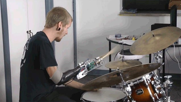 This Bionic Drummer Arm Is Like Def Leppard 2.0