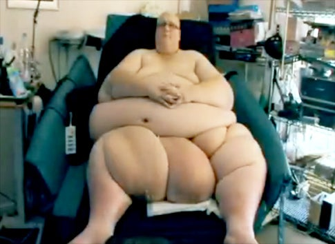 World's Fattest Man Suing Health Service For Letting Him Be Fat