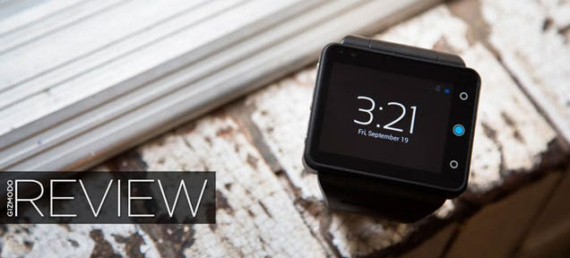 "The Joy and Misery of Life With a Grotesquely Large ""Smartwatch"""