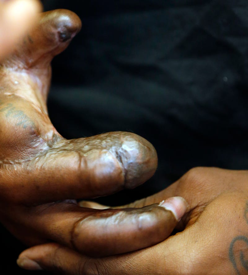 Jason Pierre Paul What Kind Of Firework: Take Your First Good Look At Jason Pierre-Paul's Mangled Hand