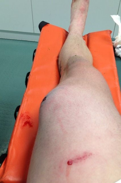 After Injury, Soccer Player Now Has Too Many Knees