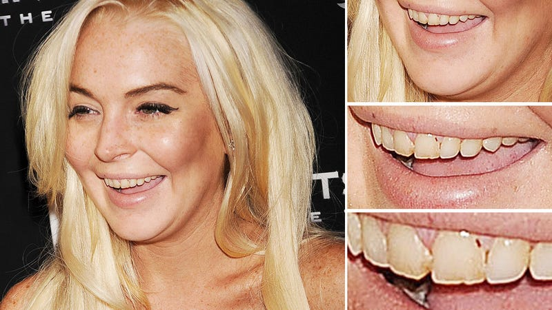 Hygiene-Challenged Lindsay Lohan Fired from Community Service