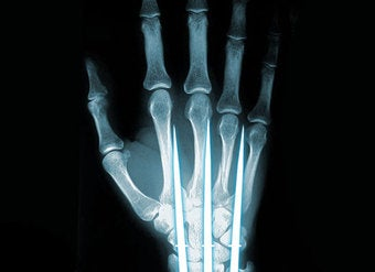 Titanium foam could make your bones as strong as Wolverine's