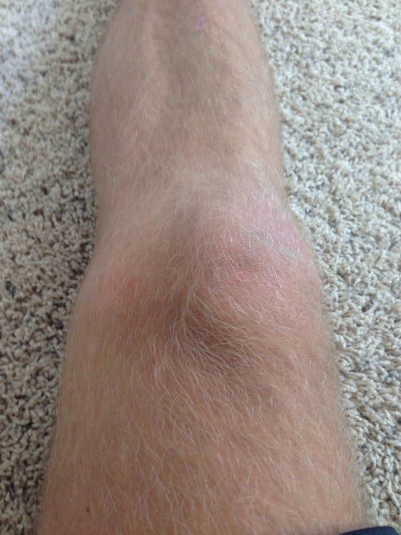 Will it knee?