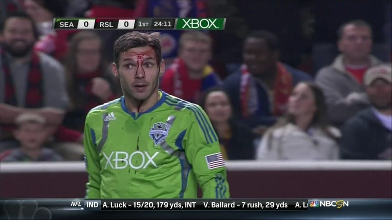A Bloodied Christian Tiffert Got The Last Laugh As Seattle Stole Victory In Salt Lake