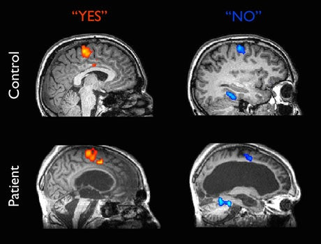 The neuroscience of comas, or what it means to be trapped inside your own mind