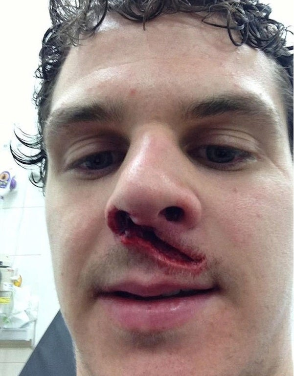 Hockey Player In UK Takes Skate To The Face And HOLY SHIT LOOK AT THAT HUGE CUT BELOW HIS NOSE
