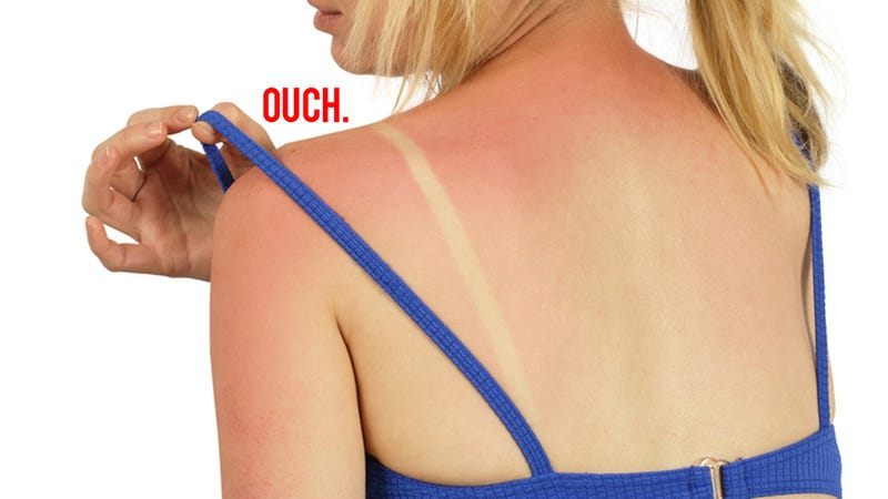Get Rid of Embarrassing Sunburn