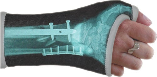 Casttoo X-Ray Cast Wraps Replace Pity with Awe