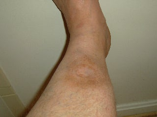 How A Softball Almost Killed This Man's Foot