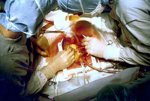 10 Current Medical Procedures our 22nd Century Descendants Will Find Barbaric