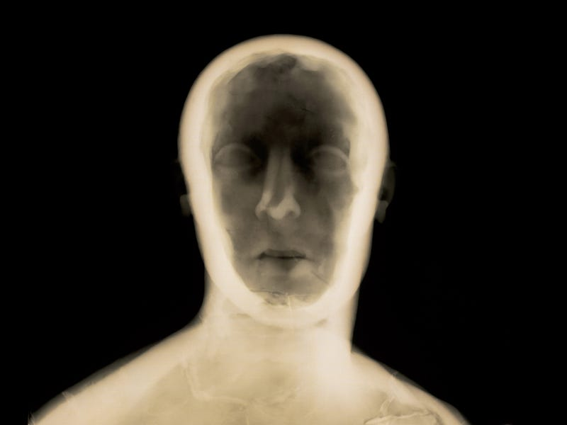 Using X-Rays To Peer Inside Ancient Art Objects