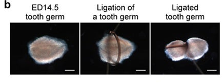 We're One Step Closer to Being Able To Regrow a Lost Tooth