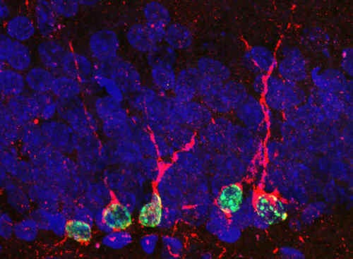 Memory-restoring compound could destroy Alzheimer's forever