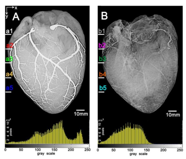 This Is What a Heart Injected With Liquid Metal Looks Like
