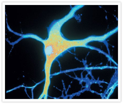New evidence that Alzheimer's disease is infectious