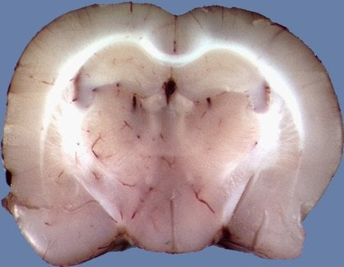 Transplanted Rat Brains Could Beat Alzheimer's
