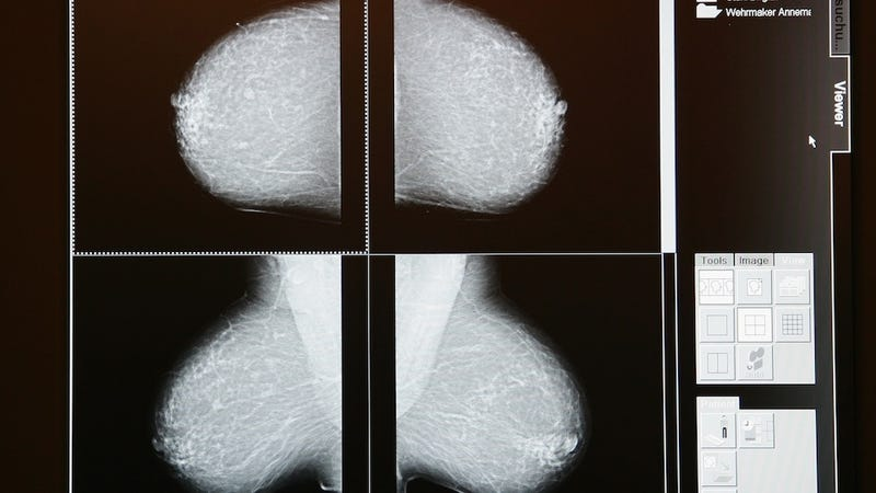 Great. Breast Cancer Prevention May Lead to Breast Cancer