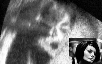 Michael Jackson Pulls a Jesus, Makes His Face Appear in an Ultrasound