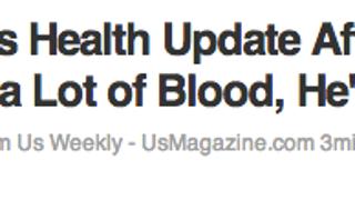 Man Bleeds, Is Human