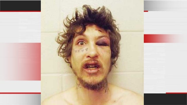 Wife Fights Back Against Abusive Husband, Yields Best Mugshot Ever