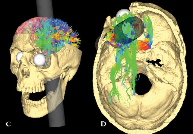 164 years later, researchers map Phineas Gage's pierced brain
