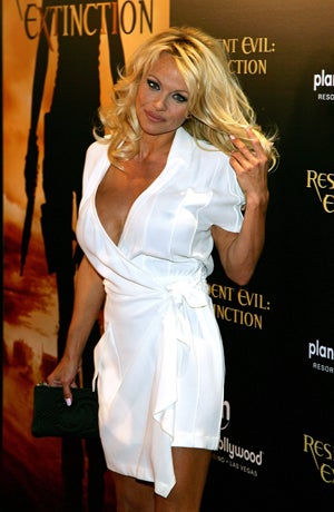 Pamela Anderson: Also Pregnant