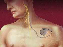 Brain Pacemaker Awakens the Near Vegetative