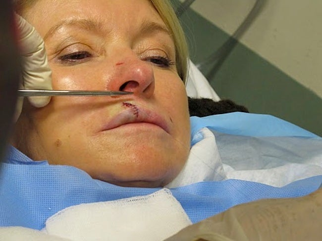 Martha Stewart Gets Stitches After Being Attacked By Own Dog