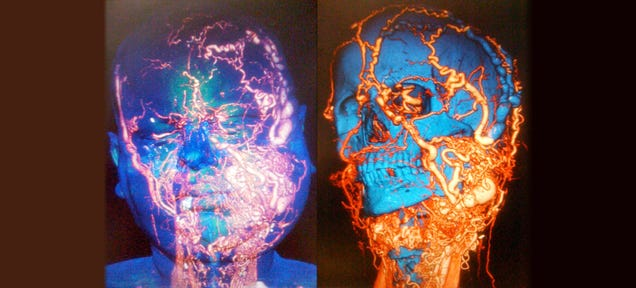 A Full Face Transplant Removed This Deadly Bundle of Blood Vessels