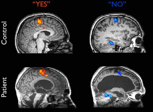 Vegetative Patient Answers Yes and No Questions With His Brain