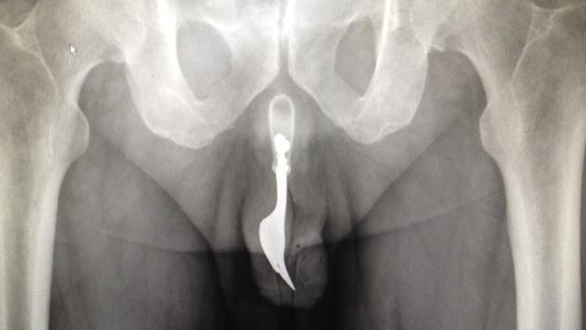 Man Ends Up with Fork Stuck in Penis After 'Unusual' Autoerotic Act