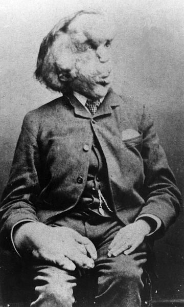 "Did Joseph Merrick, known as ""elephant man,"" have Proteus Syndrome?"