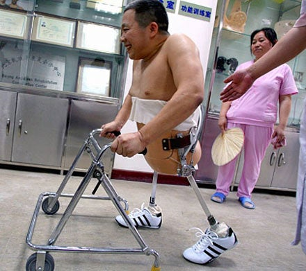Bionic Legs Help Miracle Crash Survivor Walk Again