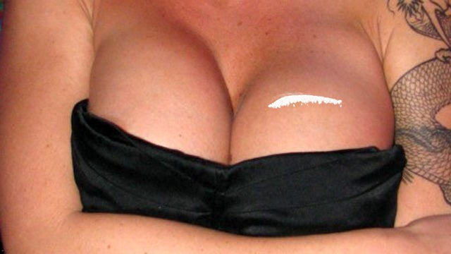 Model Tries to Smuggle Cocaine Inside Fake Breast and Butt Implants