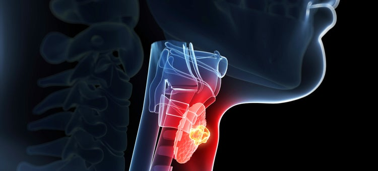 Why Thyroid Conditions Are So Bad