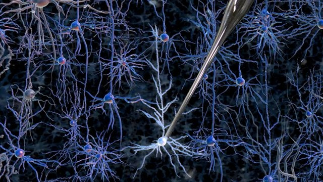 Scientists develop robot that scans information directly from neurons