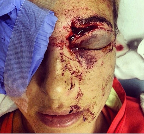 Bode Miller Accidentally Destroyed His Wife's Face With A Golf Ball