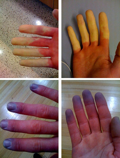 The phenomenon that makes hands change color