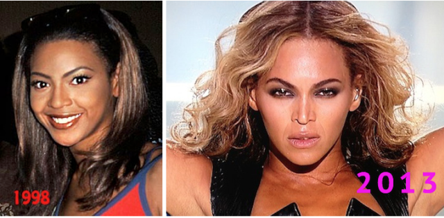 When Did Beyoncé Get a Nose Job?