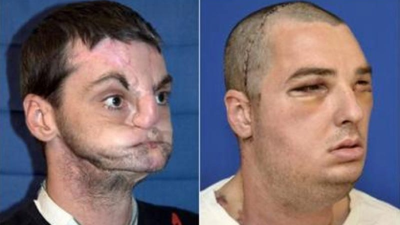 The results of the most comprehensive face transplant in history are absolutely incredible