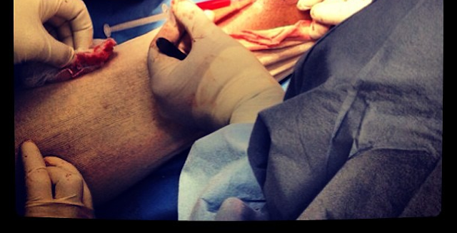 Kobe Bryant Shares Disgusting Photo Of His Achilles Surgery