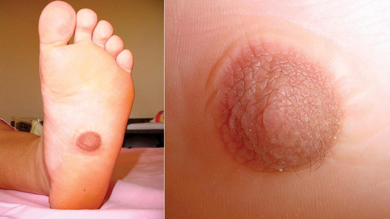 This Woman Grew a Nipple on the Bottom of Her Foot