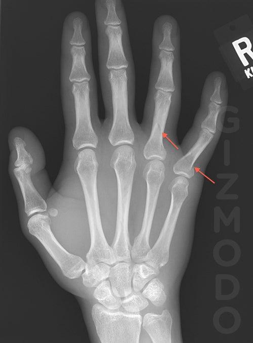 God of War Smites Human Hand (X-Ray)